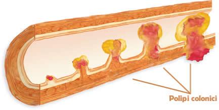 Polipii colonici simptome și tratament