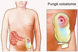 Colostomia - procedura chirurgicală